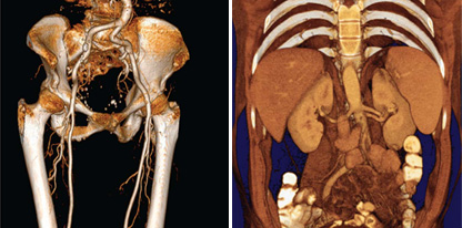tomografia-multicorte1