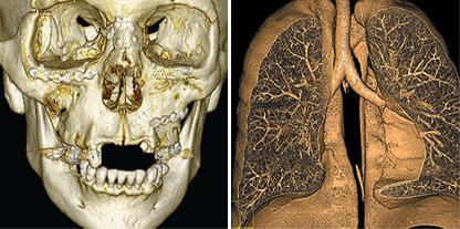 tomografia-multicorte2